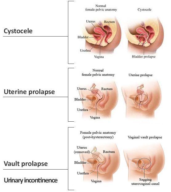 Pelvic organ prolapse causes, symptoms, and treatments